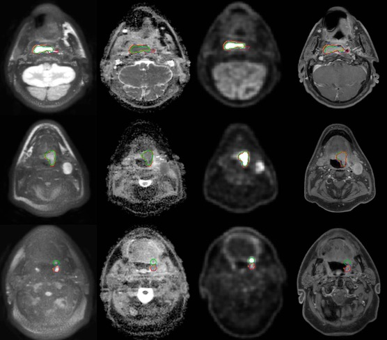 Evaluation of diffusion weighted imaging for tumor delineation in